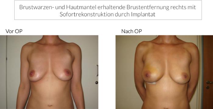 Brustkrebs Behandlung und plastisch-rekonstruktive Operationen an der Brust