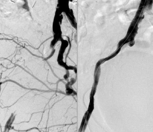Arteriosklerose Behandlung Durchblutungsstörung am Bein